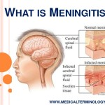 what-is-meningitis-3-638